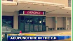Acupuncture in the ER